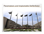 Pacemakers and Implantable Defibrillator - sha