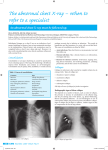 The abnormal chest X-ray – when to refer to a specialis t