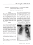 Constrictive Pericarditis Presenting as Unexplained Dyspnea With