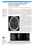 Complete right cerebral hemispheric diffusion restriction and its