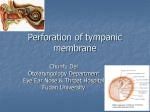 Perforation of tympanic membrane