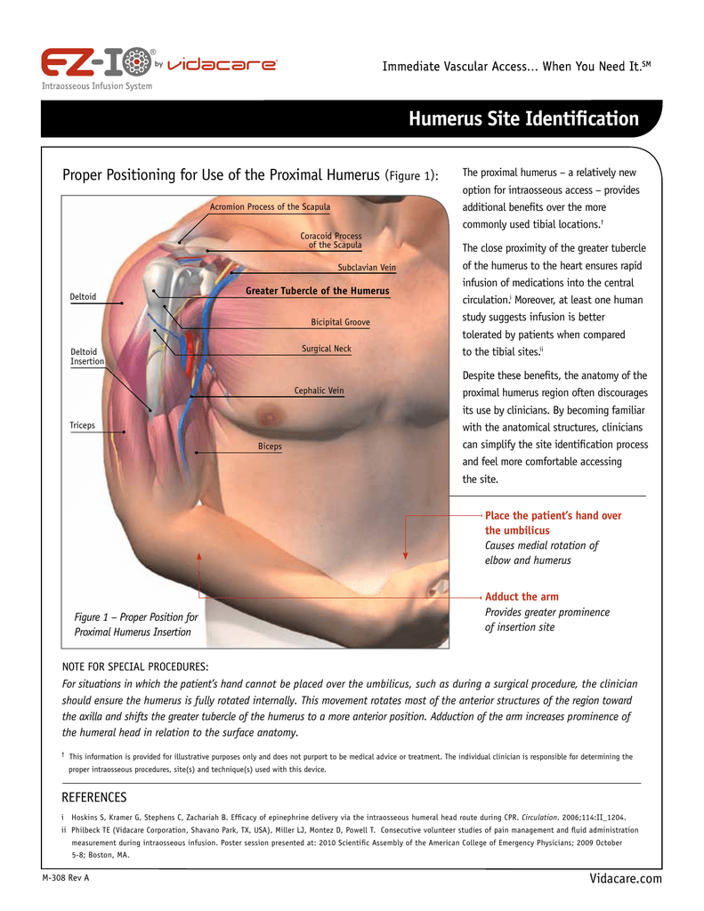 Humerus Site Identification - American College of Emergency