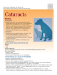 Cataract