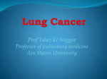 Lung Cancer - Ain Shams University