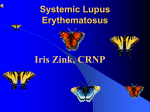 Systemic Lupus Erythematous