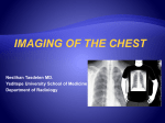 x-ray examination of the lungs - University of Yeditepe Faculty of