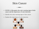 Skin Cancer - mspriorhealthpe