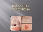 Basal Cell Carcinoma Presentation