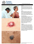 Skin Cancer Overview This is the most common form of cancer. It