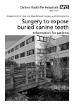 Surgery to expose buried canine teeth