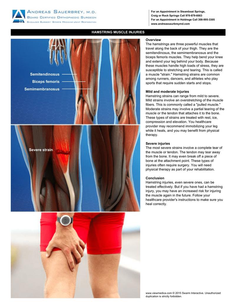 Semitendinosus Biceps femoris Semimembranosus Severe strain