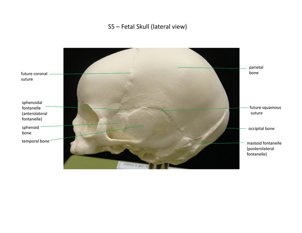 S5 Fetal Skull Lateral View