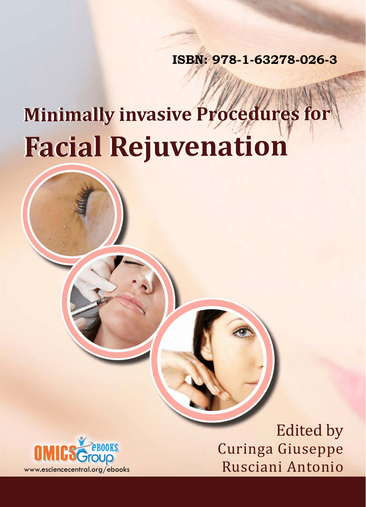 7d2e61463ab0a Minimally invasive procedures for facial - e