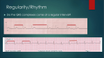 The basic`s of a 12 lead ECG part 3