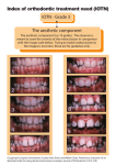 Index of orthodontic treatment need (IOTN) IOTN