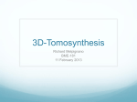 3D-Mammography/Tomography