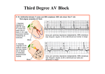 Third Degree AV Block