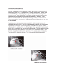 Coronary Angioplasty (PTCA): Coronary angioplasty is a technique