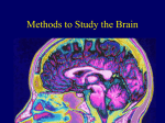 Module 11: Methods to Study the Brain
