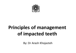 Principles of management of impacted teeth