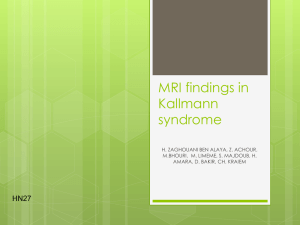 MRI findings in Kallmann syndrome
