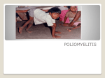 POLIOMYELITIS - Department of Community Medicine ACME