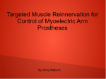 Targeted Muscle Reinnervation for Control of Myoelectric Arm