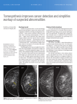 Tomosynthesis improves cancer detection and