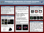Visualization and Detection of Prostatic Carcinoma