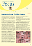 Focus Winter 2011 – Periocular Basal Cell Carcinoma