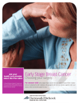 Early Stage Breast Cancer: Choosing your Surgery