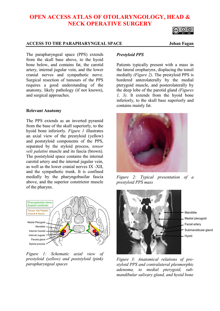 Access to Parapharyngeal Space - Vula