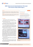 SBRT (Stereotactic Body Radiation Therapy