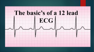 The basic`s of a 12 lead ECG part 1
