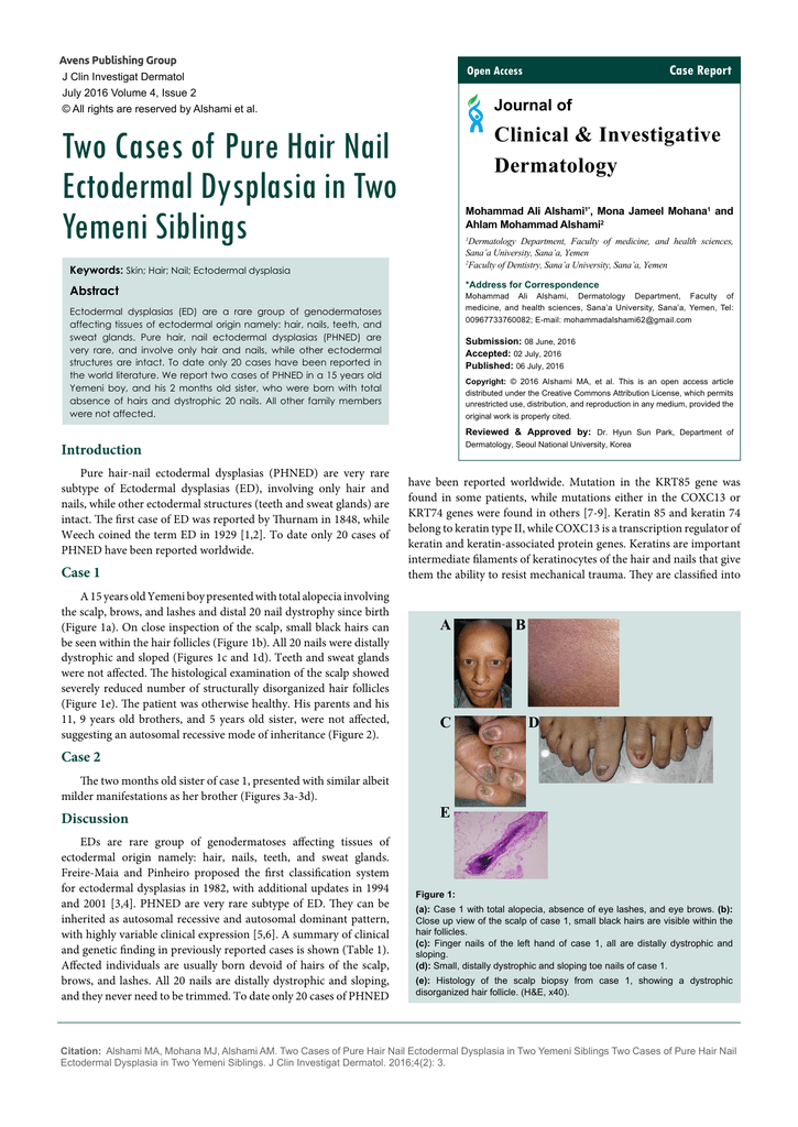 Two Cases of Pure Hair Nail Ectodermal Dysplasia in Two Yemeni