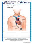 Pacemaker Placement: Epicardial