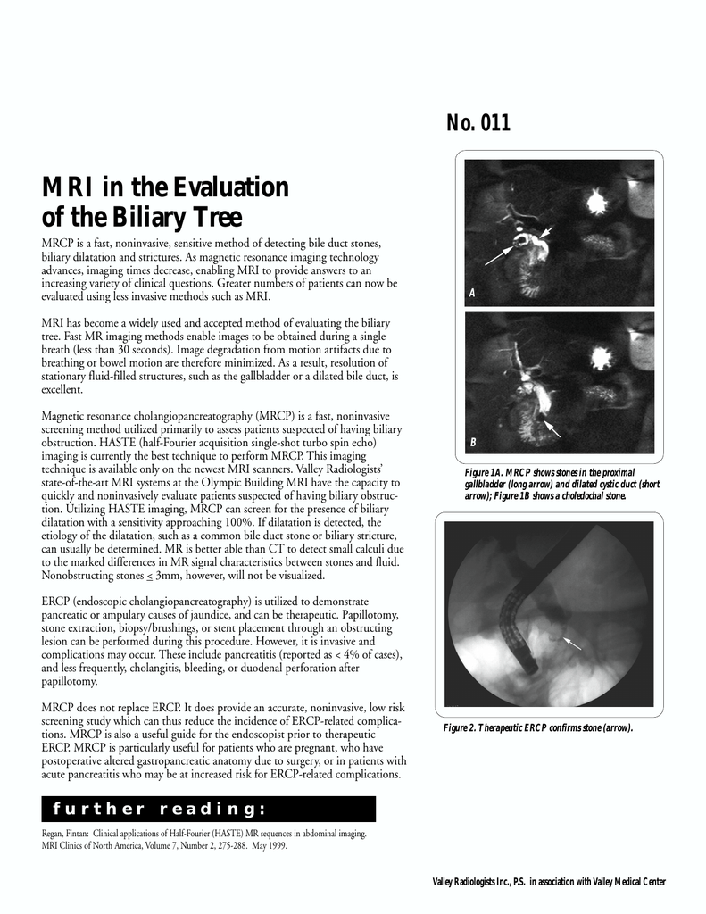 MRI in the Evaluation of the Biliary Tree