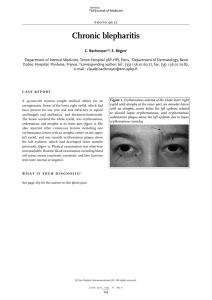 Chronic blepharitis