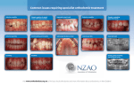 Common issues requiring specialist orthodontic treatment