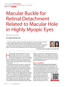 Macular Buckle for Retinal detachment Related to