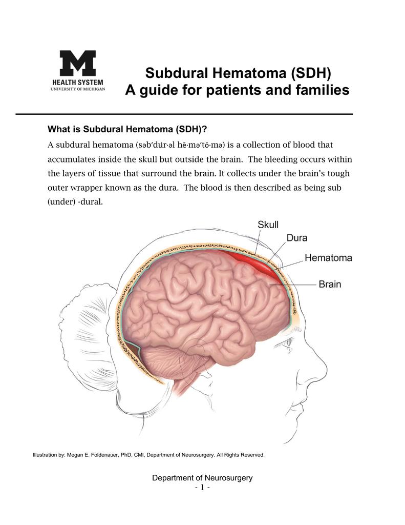 Subdural Hematoma Sdh University Of Michigan