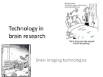 Technology in brain research