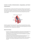 Guide to Cardiac Catheterization, Angioplasty, and Stent Implantation