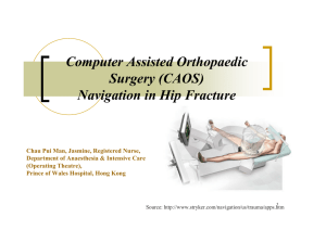 Navigation in Hip Fracture