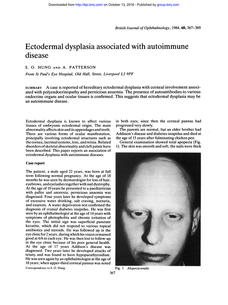 Ectodermal dysplasia associated with autoimmune disease