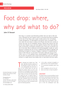 Foot drop: where, why and what to do? - Practical Neurology