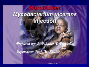 Buruli Ulcer Mycobacterium ulcerans Infection Prepared by