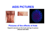 AIDS PICTURES