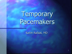Temporary Pacemakers - University of California, San Diego