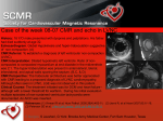 Case of the week – 06-02 - Society for Cardiovascular
